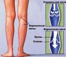 Алёна дмитриева лечение варикоза
