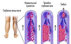 Головные боли при тромбозе